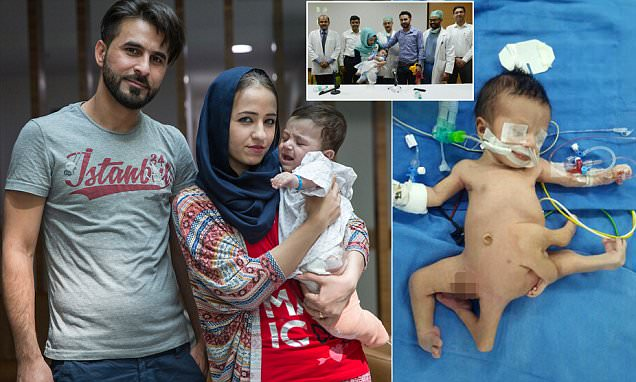 Indian baby with 8 limbs is flown home after surgery