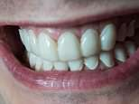 A Pizza Express worker was left with 'joke shop teeth' after paying £299 for custom-made veneers that 'curled away' from his gums. The first set (pictured) had a thick excess around the edges and curled away from his gums