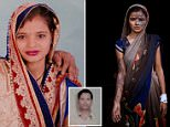 Khushboo Devi was left with horrific injuries after having acid thrown in her face by her father