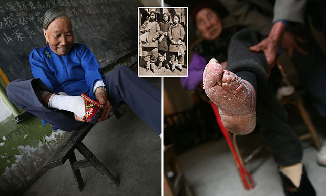 Shocking pictures of China's Bound Feet Women Village