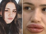 Merve Kales, 22, from southern Turkey, pictured before she was injected with unlicensed filler, which left her lips so swollen that she is now barely able to close her mouth.