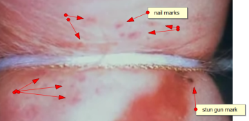 [Image: jonbenet-nail-marks-autopsy.png?w=361&h=176]