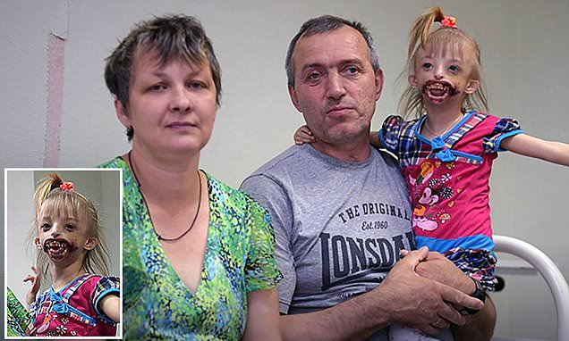 Russian girl, 3, with no lips or chin is cruelly disowned