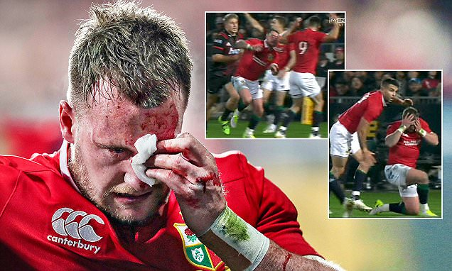 Lions full back Stuart Hogg suffers the unkindest of blows