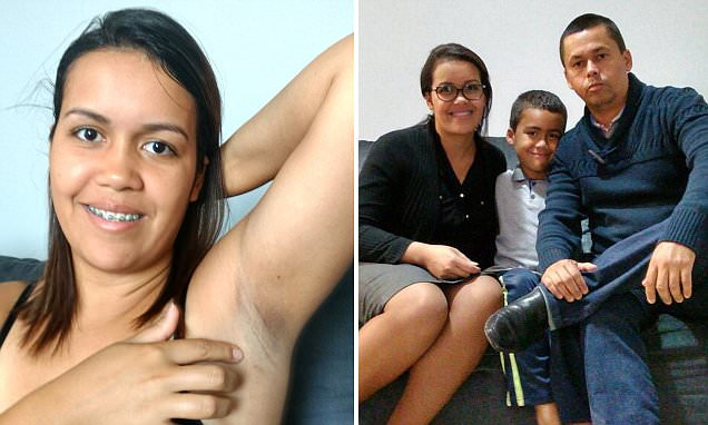 Mother who excessively sweated reveals she's had surgery