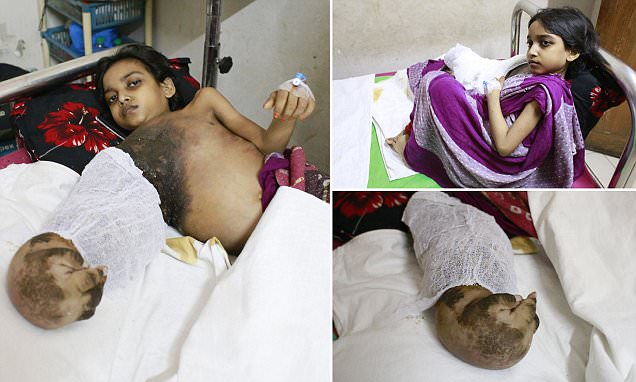 Bangladeshi girl's battle with 'tree man' disease