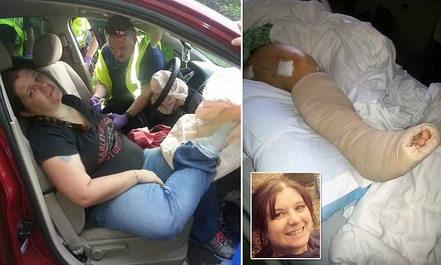 Georgia woman disabled after putting feet on dashboard