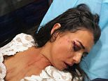 Bia Hannides was enjoying a night out in Dubai when she was attacked by another club-goer