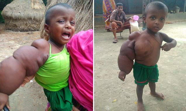 Bangladesh toddler has a hand that weighs 6.6lb