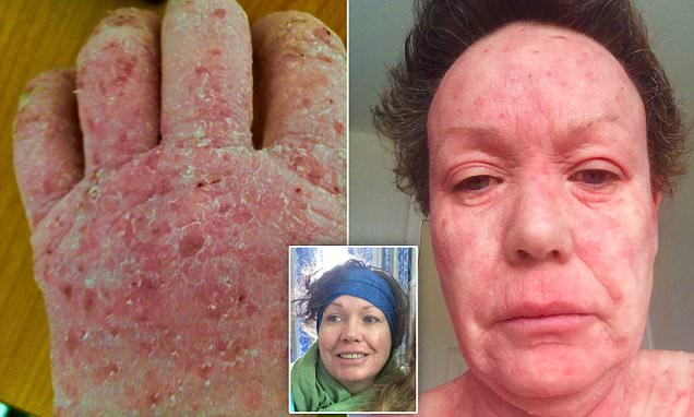 Herefordshire woman has overcome steroid cream addiction
