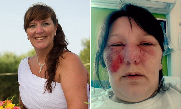 Clayton woman almost lost sight after scratching her nose