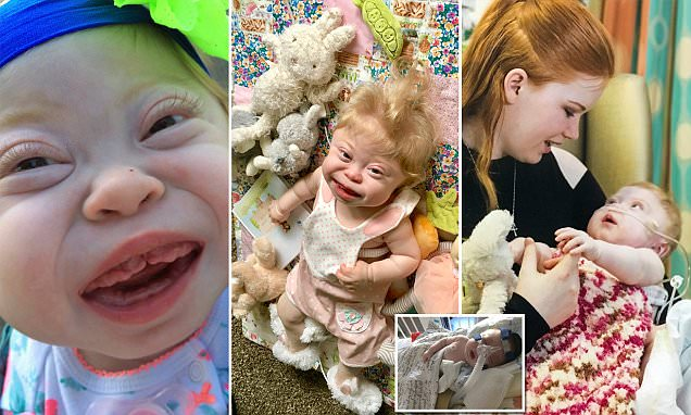 Rare i-cell disease will kill Seattle girl by three
