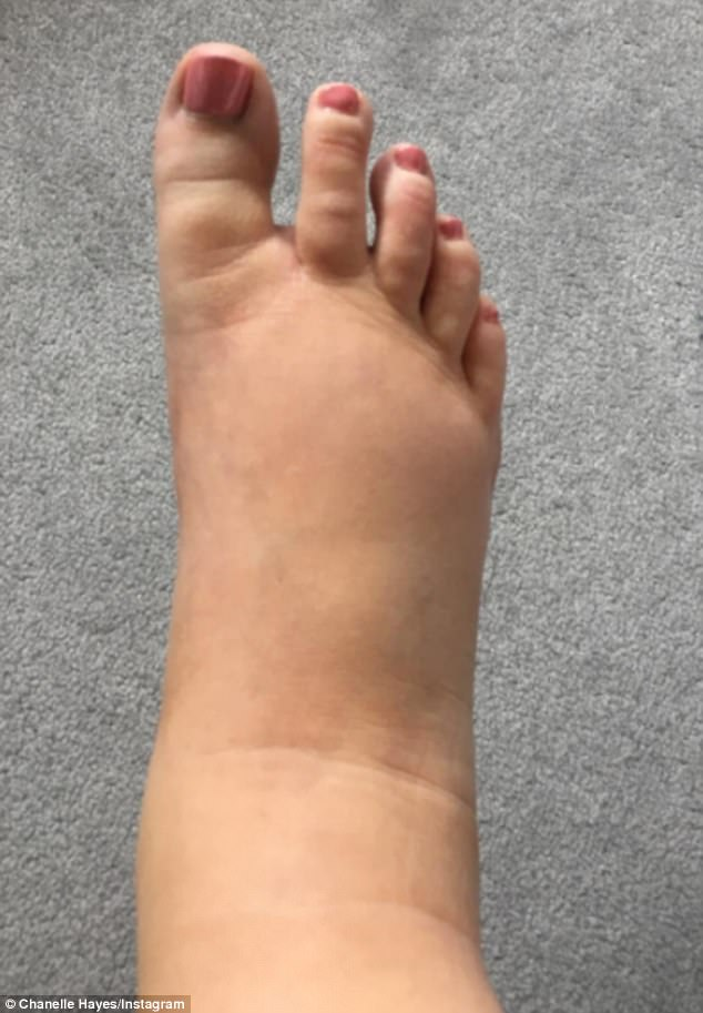 Ouch:The pained star also shared an image of her painfully swollen ankles while adding a caption on the shot reading: 'My feet and legs are so swollen I've bypassed having ankles and calves and gone straight from thigh to foot. Pregnancy really suits me'