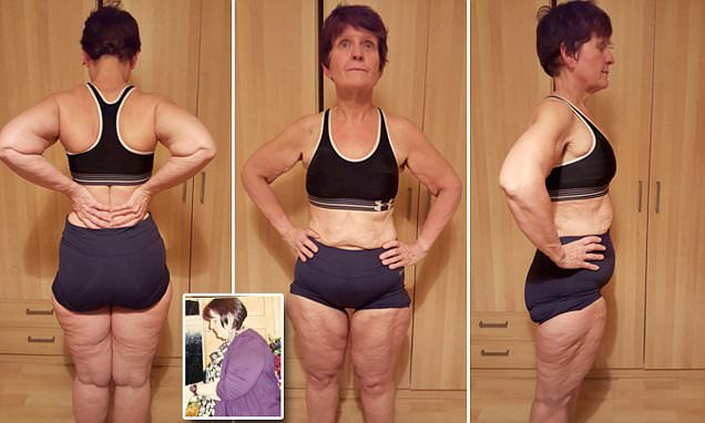 Grandma who lost 17 stone is denied excess skin removal