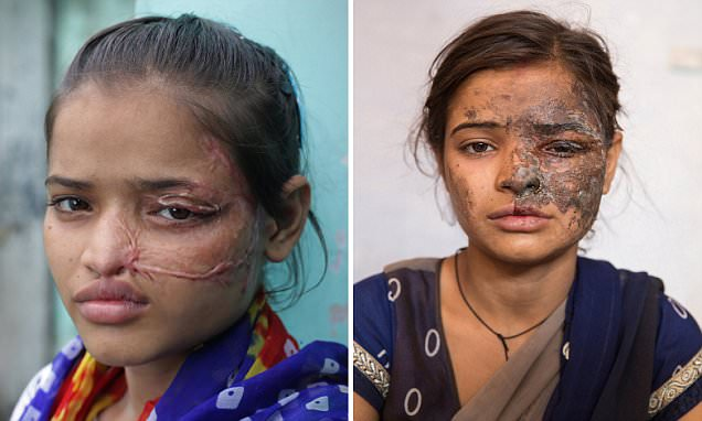 Indian acid attack victim shares results of surgery