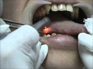 Patient having taste buds removed