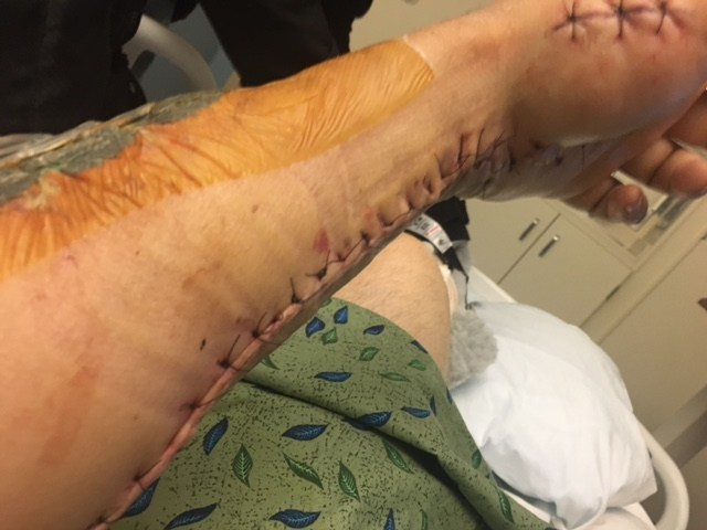 Compartment syndrome surgery