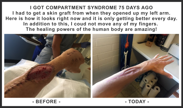 Healing from compartment syndrome