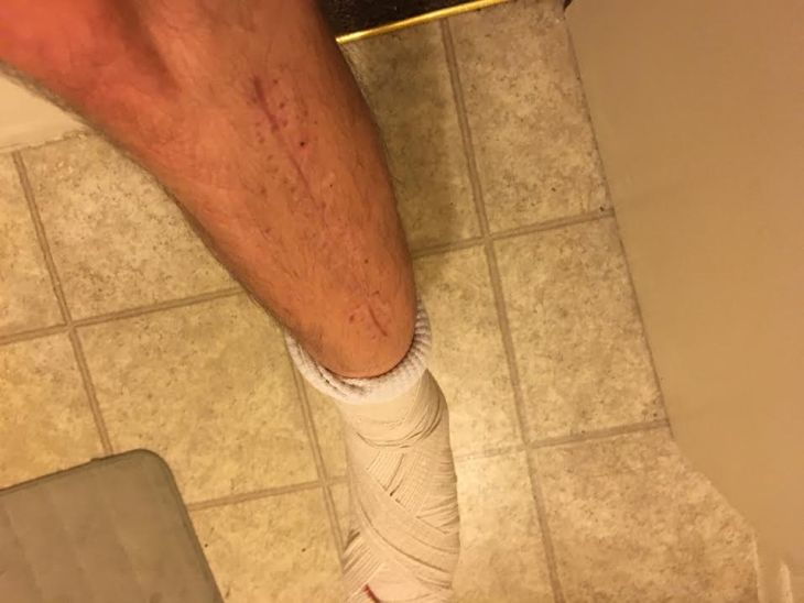 My leg healing from compartment syndrome