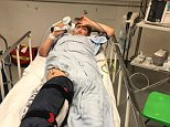 Scott Turner (pictured) needed hours of painful surgery to re-attach his foot