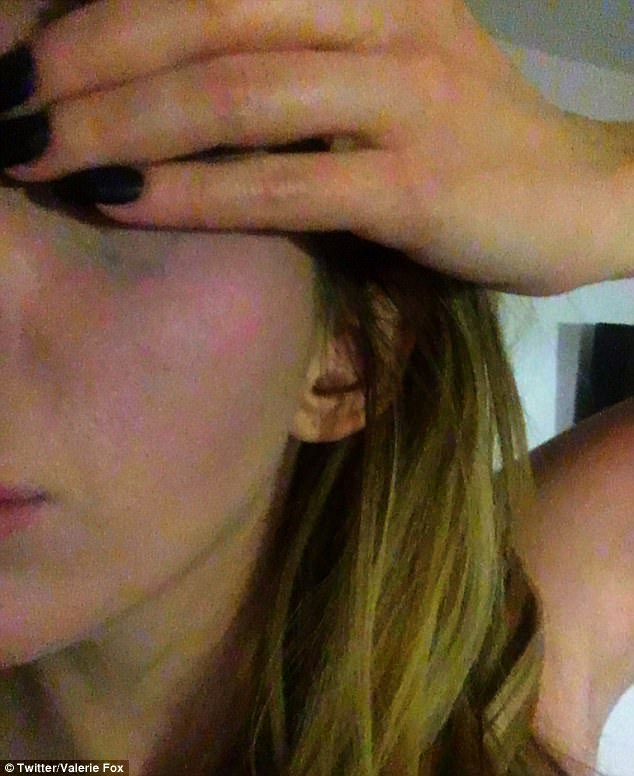 Ms Fox shared images of her injuries online, including a bruise on her face, while denying that she had invented the story