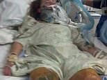 Mandy Horvath lost both of her legs above the knee after she was hit by a coal train