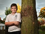 A terrified ten-year-old boy's leg exploded with pus because medics had left pieces of wood in a wound after he fell out of a tree, his family have said