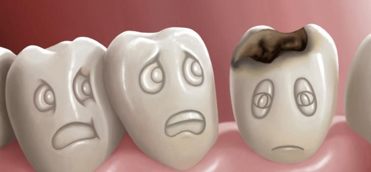 cara mengatasi gigi berlubang