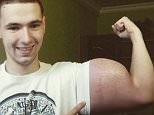 Grotesque:Kirill Tereshin has achieved bulging muscles by injecting himself with synthol