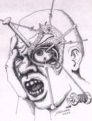 Text Box: Cluster headache as illustrated by a sufferer