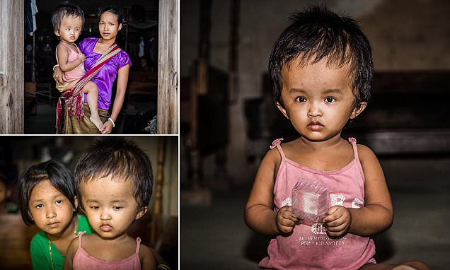 Indian girl's head doubles in size due to rare disease