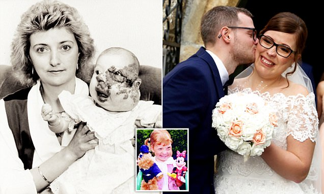 Corby woman finds love after being born with haemangioma