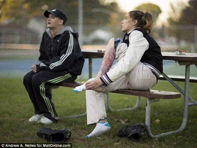 Eaten alive: Amber Neitzel, 26, right, shows the wound on her leg from the drug Krokodil with her sister Angie Neitzel, 29, left, in Joliet, Illinois