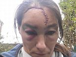 Nikki Hurst, 32, was assaulted by three Asian men as she walked down in Lady Ann Road in Batley, West Yorkshire, leaving her with a horrific head injury (shown)