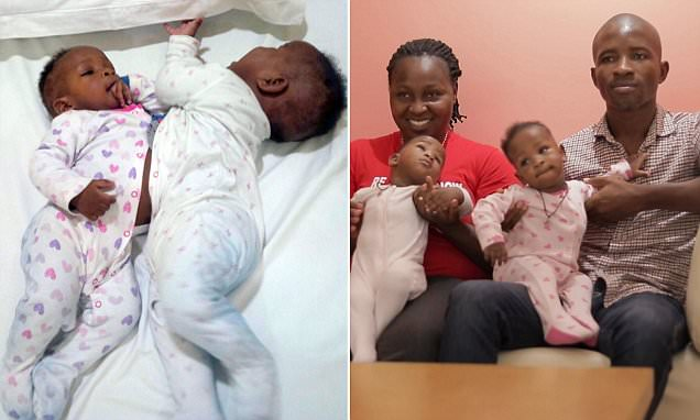 Conjoined Nigerian twins can now live 'independent lives'