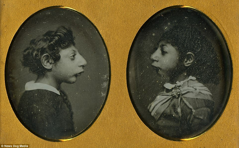 Maximo and Bartola, who were billed as the 'Aztec Children,' seen here in 1850. The brother and sister both suffered from microephaly and cognitive developmental disability