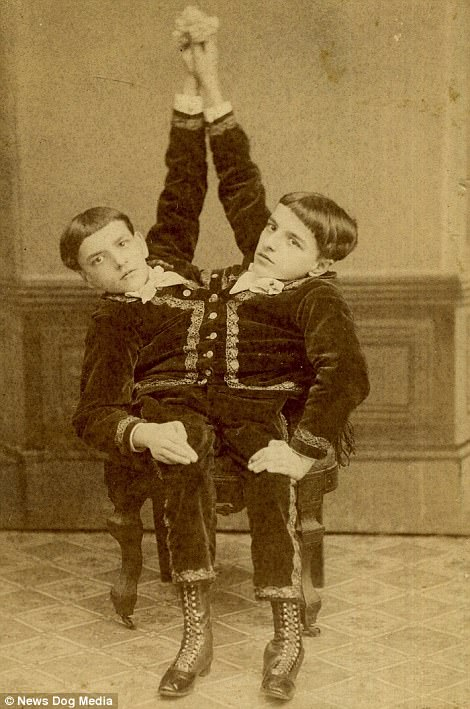 Conjoined twins Giacomo and Giovanni Tocci were born in Italy in the 1870s. Giacomo and Giovanni were born with two heads and just two legs between them - with each twin controlling their respective leg
