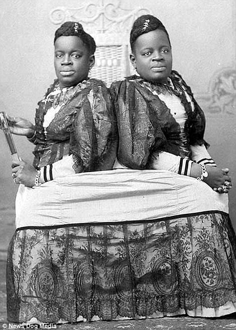 Black-and-white photographs of the performers show conjoined twins Millie and Christine Mckoy