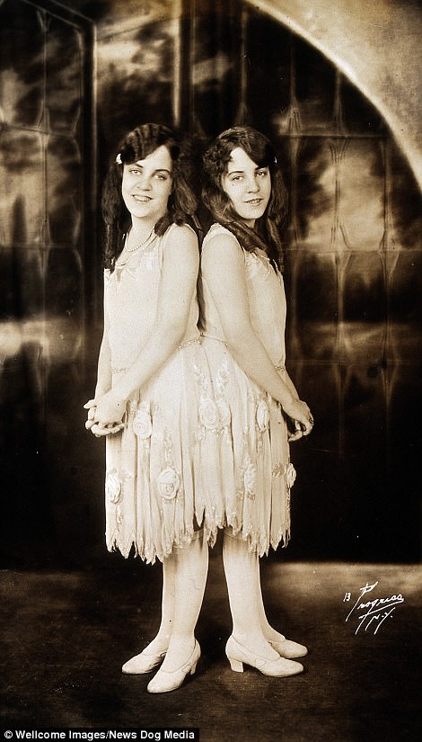 The twins had a successful career, but Mary Hilton kept them in strict control with physical abuse while their later guardians Edith and Meyer Meyers held the girls captive and beat them
