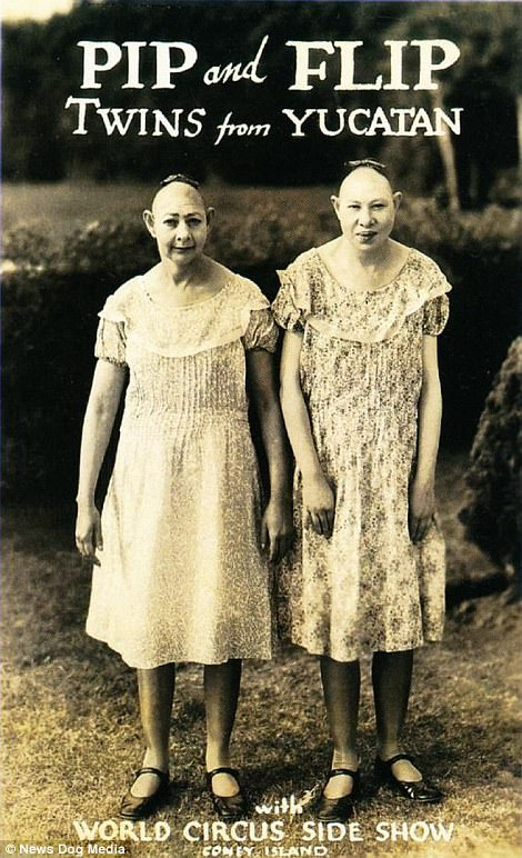 Black-and-white photographs of the performers show siblings who were exhibited at circus 'freak shows' in the 19th Century, including the Snow Sisters, who were billed as being from Yucatan, despite being born in Georgia. The Snow sisters were born with microcephaly, a neuro-developmental disorder characterised by a small head. Pip and Flip, real names Jenny and Elvira, were also intellectually delayed, possessing toddler-like mentalities