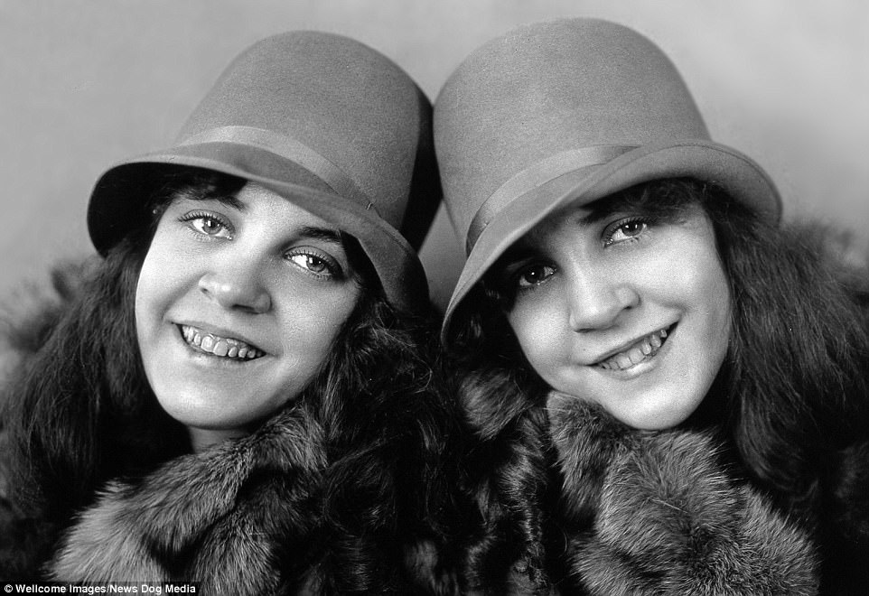 Their guardians kept most of the twinsí income during their short but profitable career After their tour manager abandoned them at a drive-in in North Carolina in 1961, Daisy and Violet were forced to take a job at a nearby grocery store. They ended their lives penniless and in obscurity