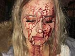 Attacked: Shocking image of Sophie Johansson, 19, after she was bottled by a man when she rebuffed him for groping her in a nightclub in Malmo, Sweden