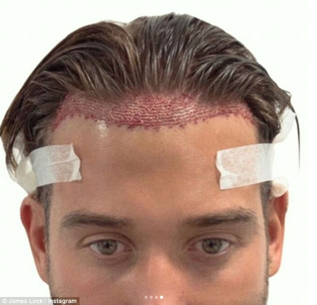 Hair we go: James' new look comes after he revealed he had undergone a hair transplant - despite not really needing one