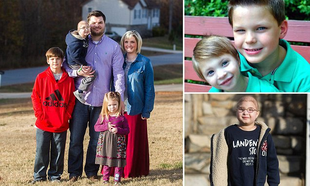 Boy suffers from dwarfism that affects less than 30 people