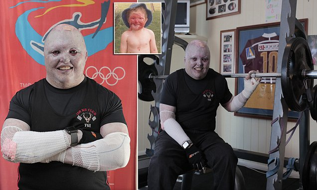 Queensland man with a severe skin condition defies doctors