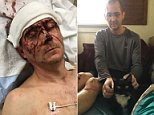 Josh Morrison (pictured in the hospital), 45, of Portland, was brutally attacked in his own home by three robbers after he opened his door to aid a woman who was frantically screaming for help