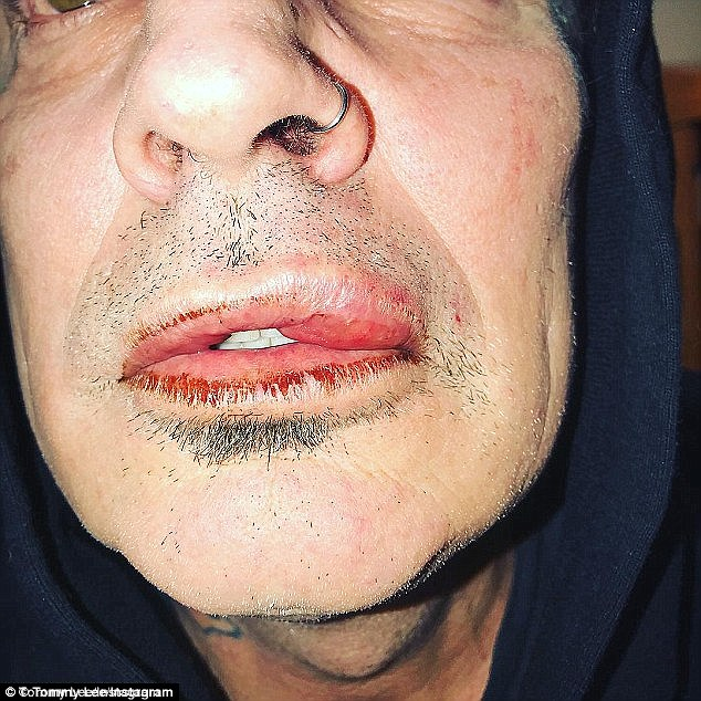 Graphic: Tommy Lee's son Brandon allegedly busted his father's lip and knocked him out during a fight two weeks ago