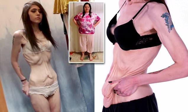 Woman left with saggy skin after shedding 200lbs is now obsessed with weight loss
