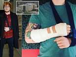 Bandaged up! Both arms were bandaged up as Ed broke is right wrist and left elbow last year
