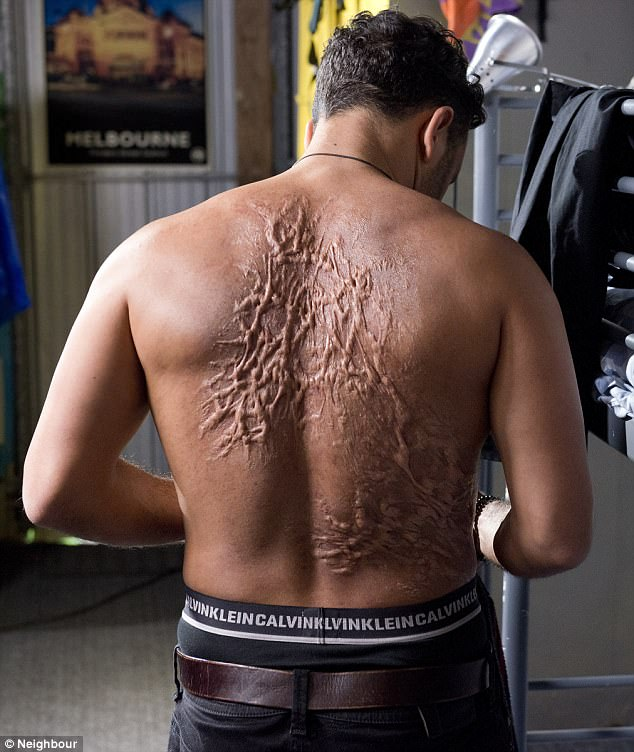 Enigmatic:A shocking photograph revealed Ryan's transformation as his back can be seen covered in gruesome scars when he is stripped down to his Calvin Klein's